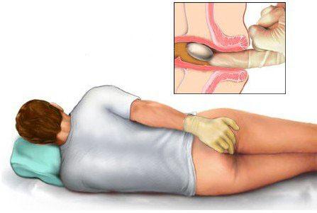 Bệnh trĩ này gây nhiều tác hại cho cuộc sống hàng ngày