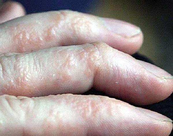 Nguyên nhân và triệu chứng cơ bản chàm tổ đỉa