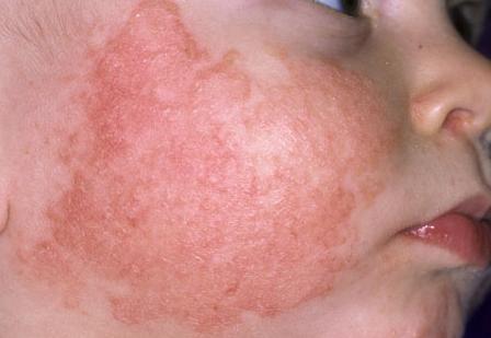 Các triệu chứng của bệnh viêm da tiếp xúc kích ứng